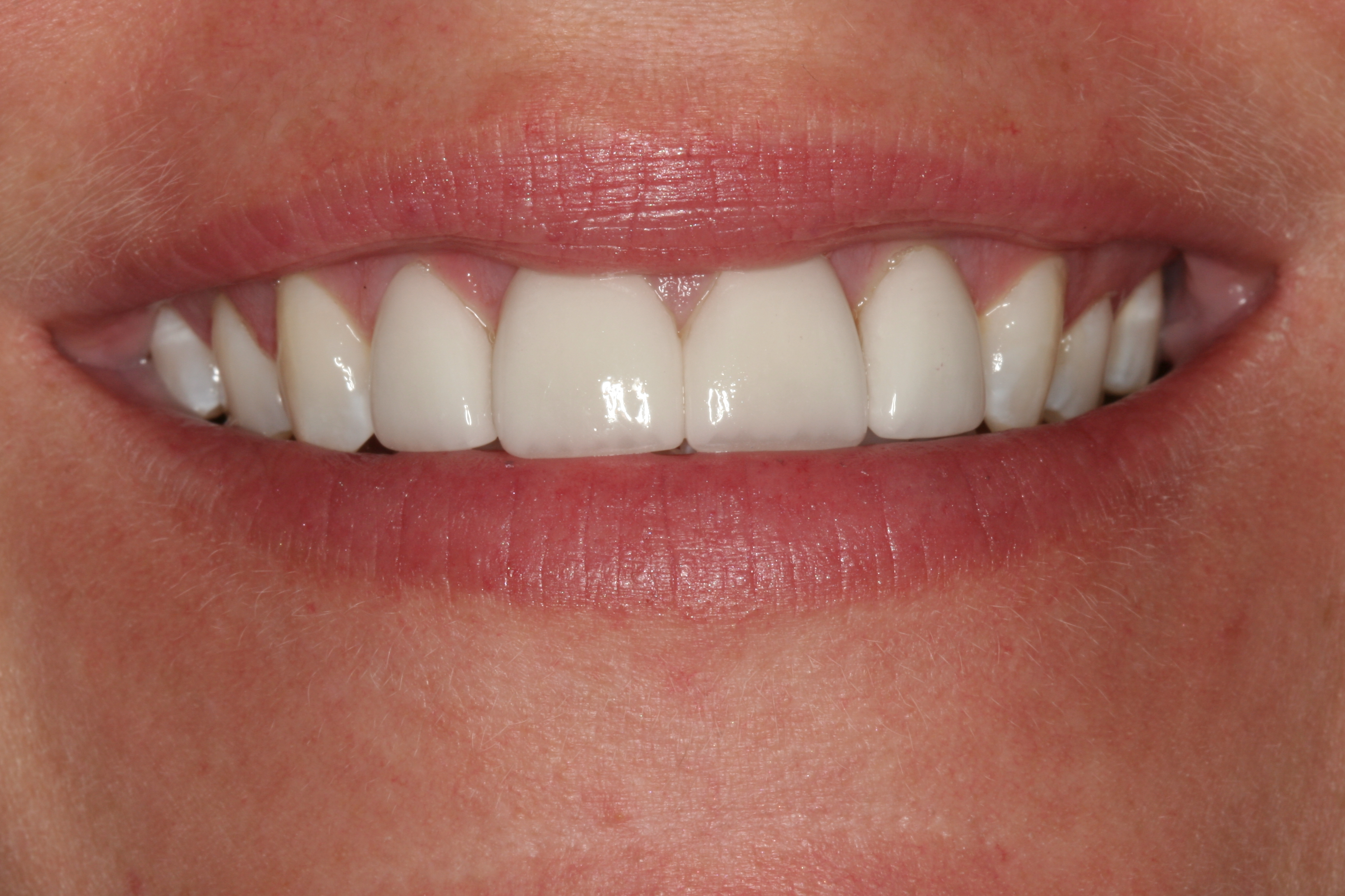 Boynton Dental: Before & After