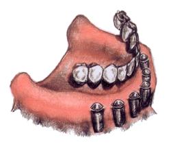 Teeth15
