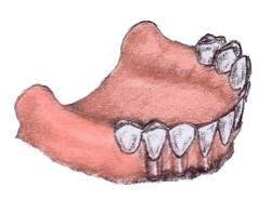 Teeth16