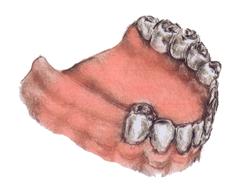 Teeth8