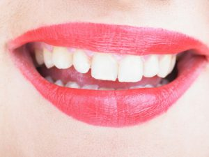 Boynton Beach Dentist | Teeth Whitening