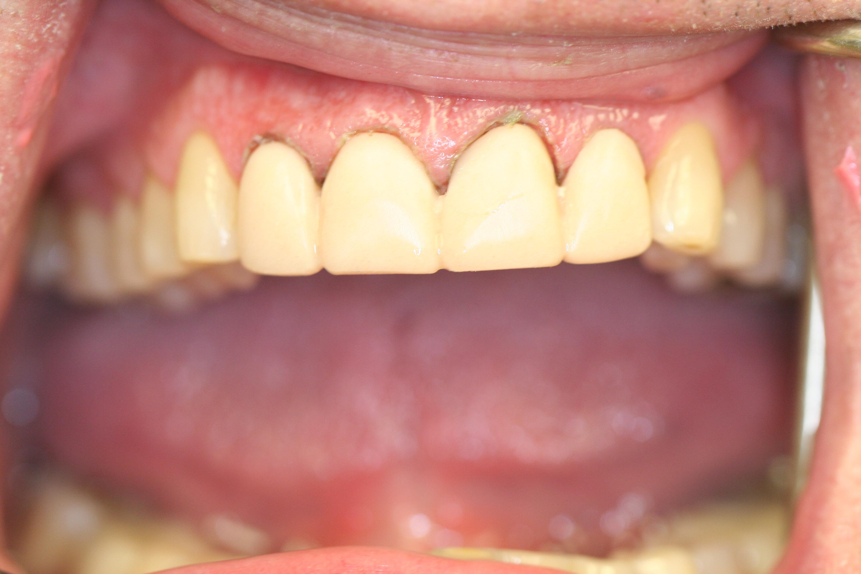Boynton Dentist East Boynton Dental Mitchell Indictor Dentist